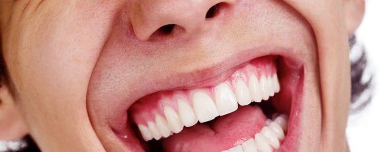 שיניים בריאות